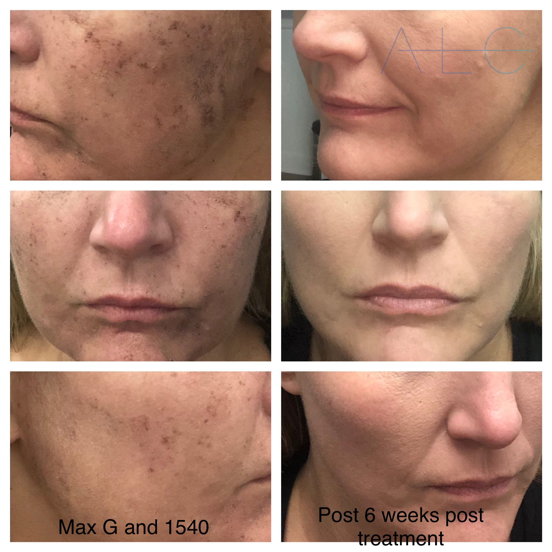 Before and after ICON treatments results for brown spots